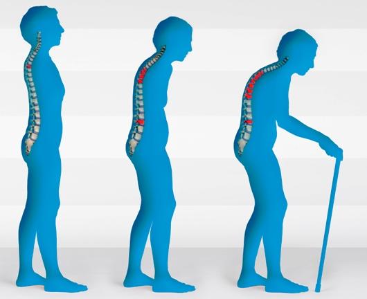 Wanita Lebih Rentan Terkena Osteoporosis
