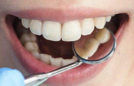 Penyebab Karang Gigi dan Cara Mengatasinya